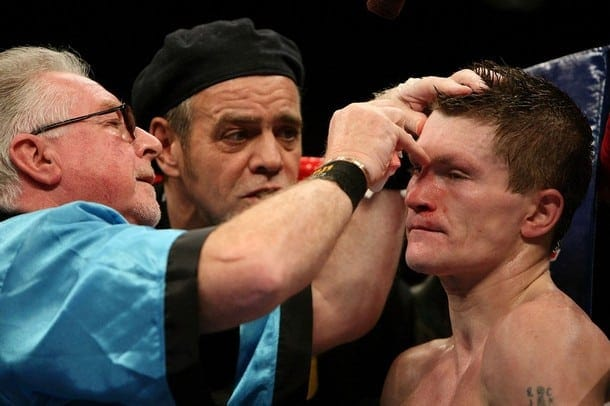 Cut man Mick Williamson works on Ricky Hatton's cut eye