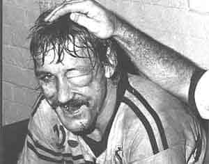 Mark Broadhurst with a swollen eye